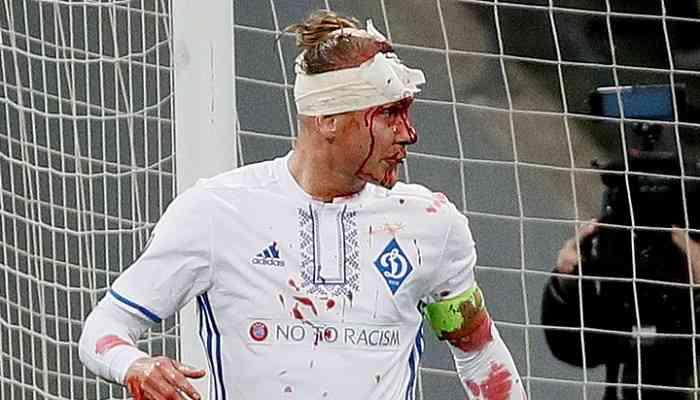 Динамо потеряло двух ключевых игроков накануне матча против Шахтера